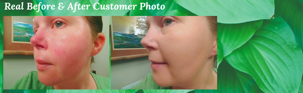 better'n ur skin organic foundation, before and after photo, gluten free, vegan, cruelty free